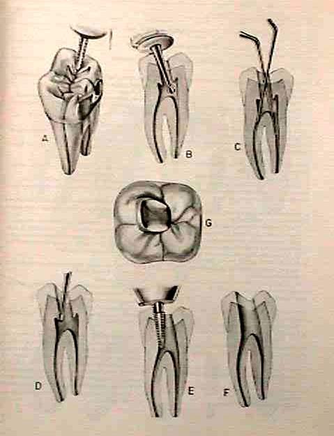 Accesos molares inferiores