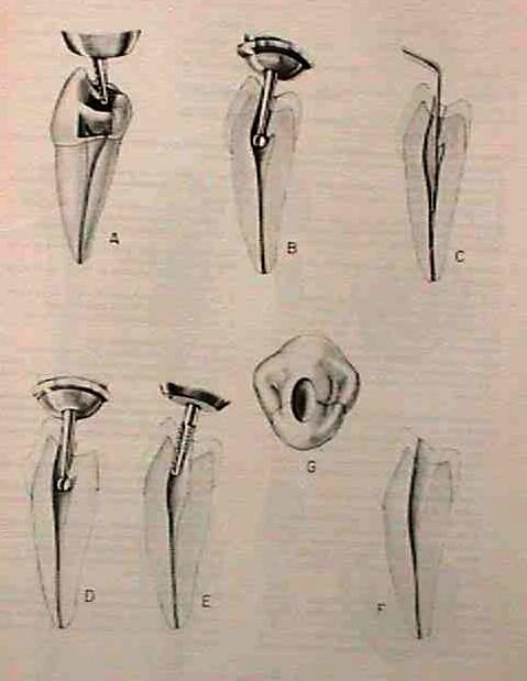 Accesos premolares inferiores