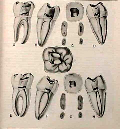 Morfología 1er molar inferior