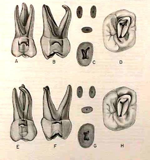Morfología 1er molar superior