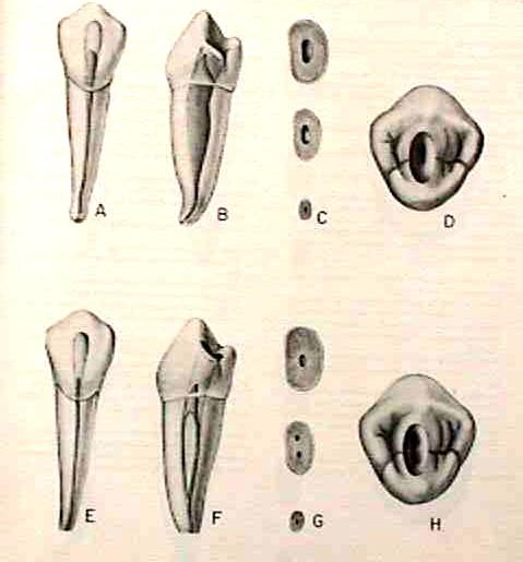 Morfología 1er premolar inferior