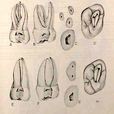Morfología 2° molar superior
