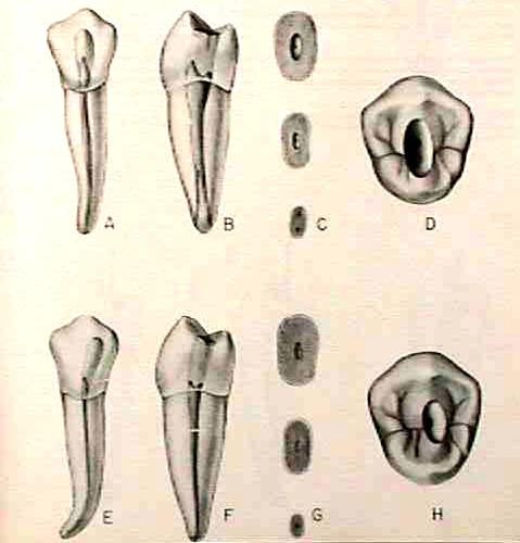 Morfología 2° premolar inferior