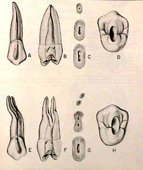 Morfología 2° premolar superior