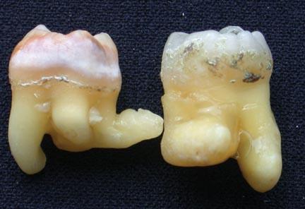 Morfología: 3er molar inferior